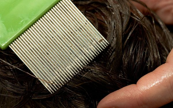 Nits being combed out of girl's hair