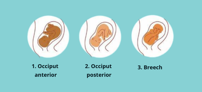 Baby positions in the womb